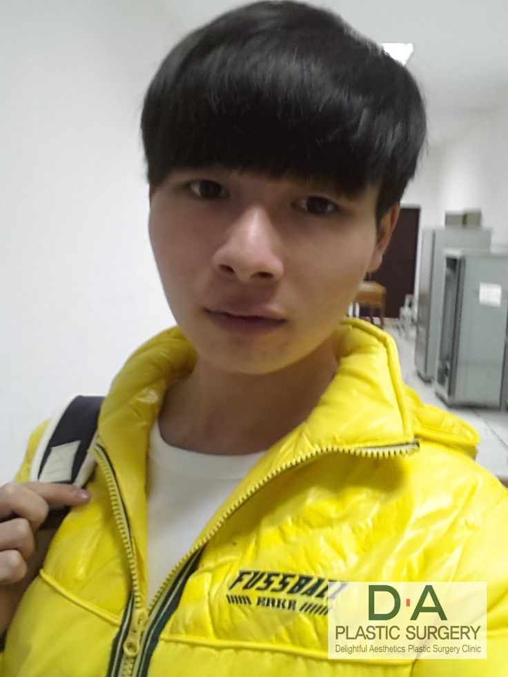 BEFORE selfie of Chinese patient FACIAL CONTOURING and RHINOPLASTY #FacialContouring #Rhinoplasty #CosmeticSurgery PlasticSurgery #PlasticSurgeryInKorea #Gangnam #Korea #DAPRS #DaPlasticSurgery #KoreaPlasticSurgery #beauty #koreanBeauty #MensPlasticsurgery #MalePlasticSurgery