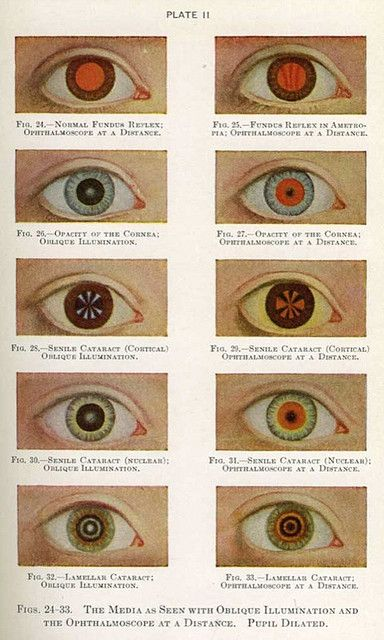 """from the """"Manual of the Diseases of the Eye for Students and General Practitioners,"""" Charles H. May M.D.,  (1939 edition, orig, 1900)"""