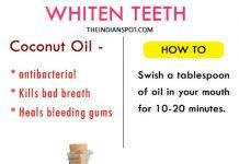 Top home remedies to whiten teeth at home