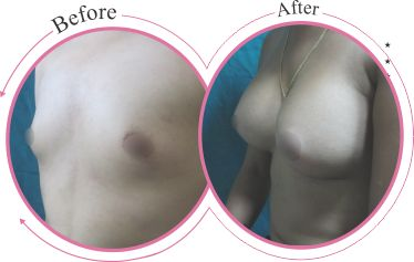 If you are looking for breast augmentation surgery in India then your best choice is Olmec plastic and cosmetic surgery center Delhi, India.