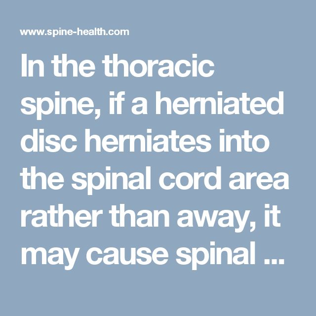 In the thoracic spine, if a herniated disc herniates into the spinal cord area rather than away, it may cause spinal cord compression, numbness, and other symptoms called myelopoathy.
