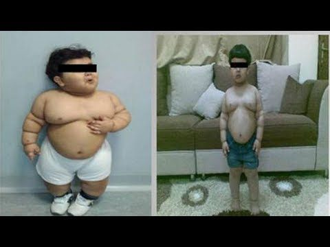 Before And After Obese Pictures : Before and After: Fat baby weight loss [PICTURES and VIDEO]