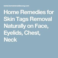 Home Remedies for Skin Tags Removal Naturally on Face, Eyelids, Chest, Neck