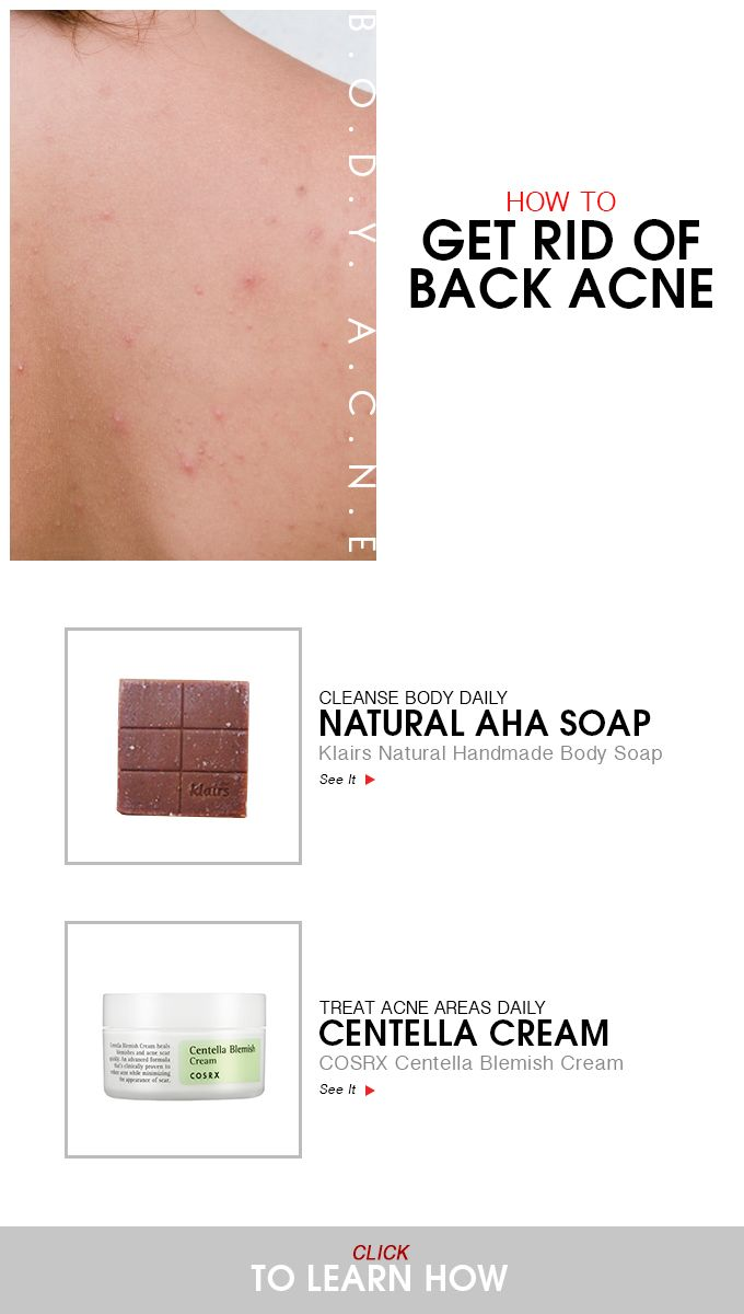 how to clear my acne fast