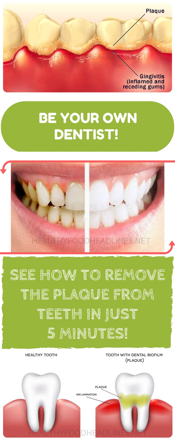 BE-YOUR-OWN-DENTIST-SEE-HOW-TO-REMOVE-THE-PLAQUE-FROM-TEETH-IN-JUST-5-MINUTES (1)