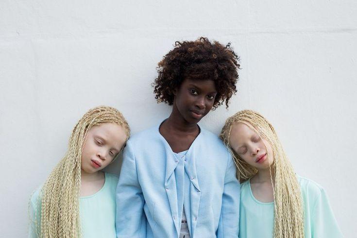 Beleza única: gêmeas albinas protagonizam ensaio inspirador