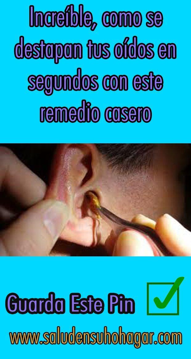 En Ocasiones Es Necesario Remover Tapones De Cera Aunque Un Oído Saludable Debería Limpiars Remedios Para La Salud Salud En El Hogar Consejos Para La Salud