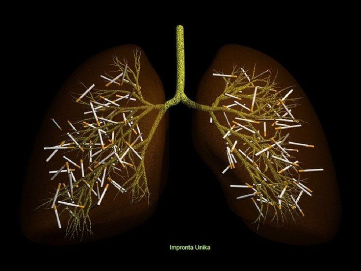 Il fumo di tabacco causa, solo in Italia, circa 90 mila morti l'anno ed è responsabile di oltre 30 mila diagnosi di tumore al polmone, con severe conseguen