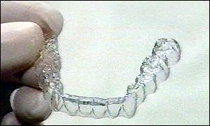 An invisible brace that takes the embarrassment out of dental care is being launched in the UK. Description from news.bbc.co.uk. I searched for this on bing.com/images