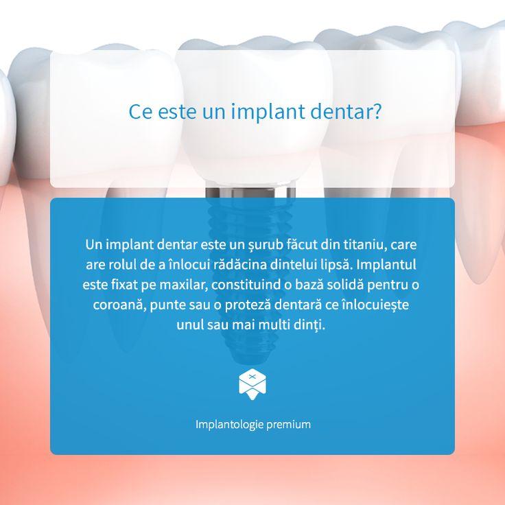 Implantul dentar este cea mai bună soluție de înlocuire a unui dinte care lipsește. Acestă remediază aspectul inestetic și previne problemele de sănătate dentară care pot apărea: migrația și carierea celorlalți dinți, resorbția osului.