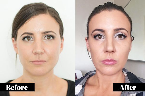 This Is Why I Got Botox For TMJ (Jaw Muscles | Botox ...