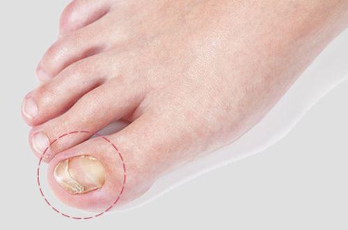 Jaké jsou tiché dermatologů: produkt, který ničí plísně a bakterie! - MirTesen