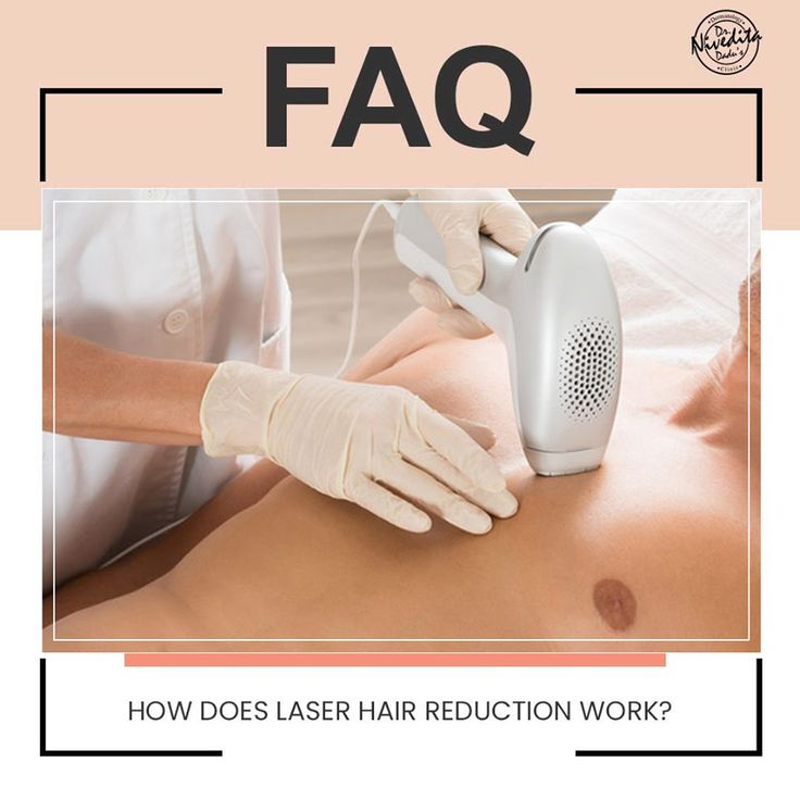 Laser hair reduction is an easy, quick and effective