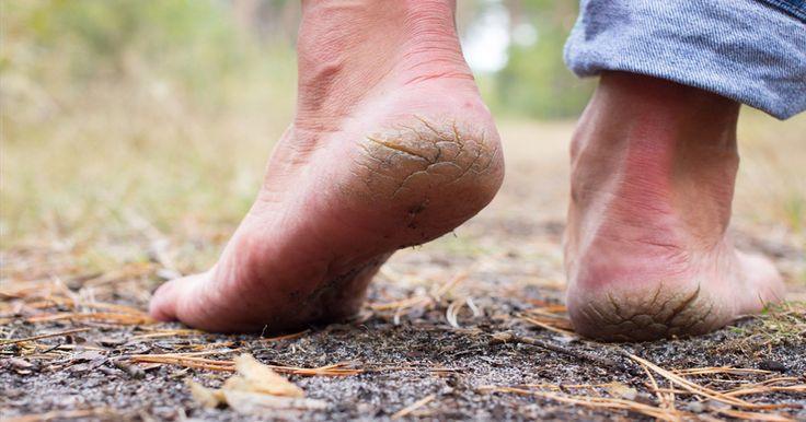 Oubliez les pédicures dispendieuses, avec seulement 2 ingrédients de cuisine, vos pieds seront plus beaux que jamais!