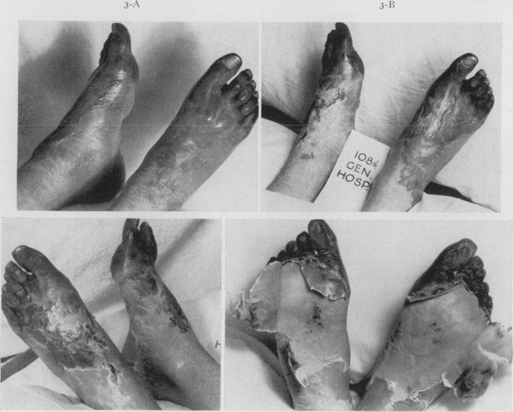 WW1. trench foot