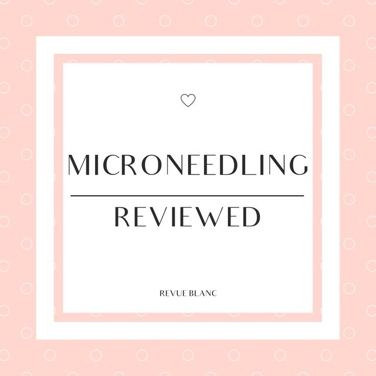 Microneedling Reviewed!  Acne Scars | Even Skin Tone | Reduce Pore Size