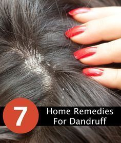 How to Get Rid of Dandruff Using Home Remedies  - some of the best home remedies for removing dandruff as fast as possible.