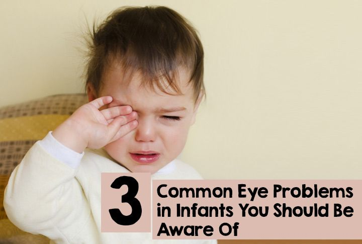 Common Eye Problems in Infants That You Should Be Aware of.