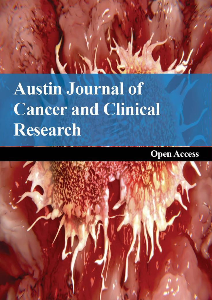 Austin Journal of Cancer and Clinical Research is an open access, peer reviewed, scholarly journal dedicated to publish articles in all areas of cancer research and oncology. The aim of the journal is to provide a forum for oncologists, researchers, physicians, and other health professionals to find most recent advances in the areas of cancer research.