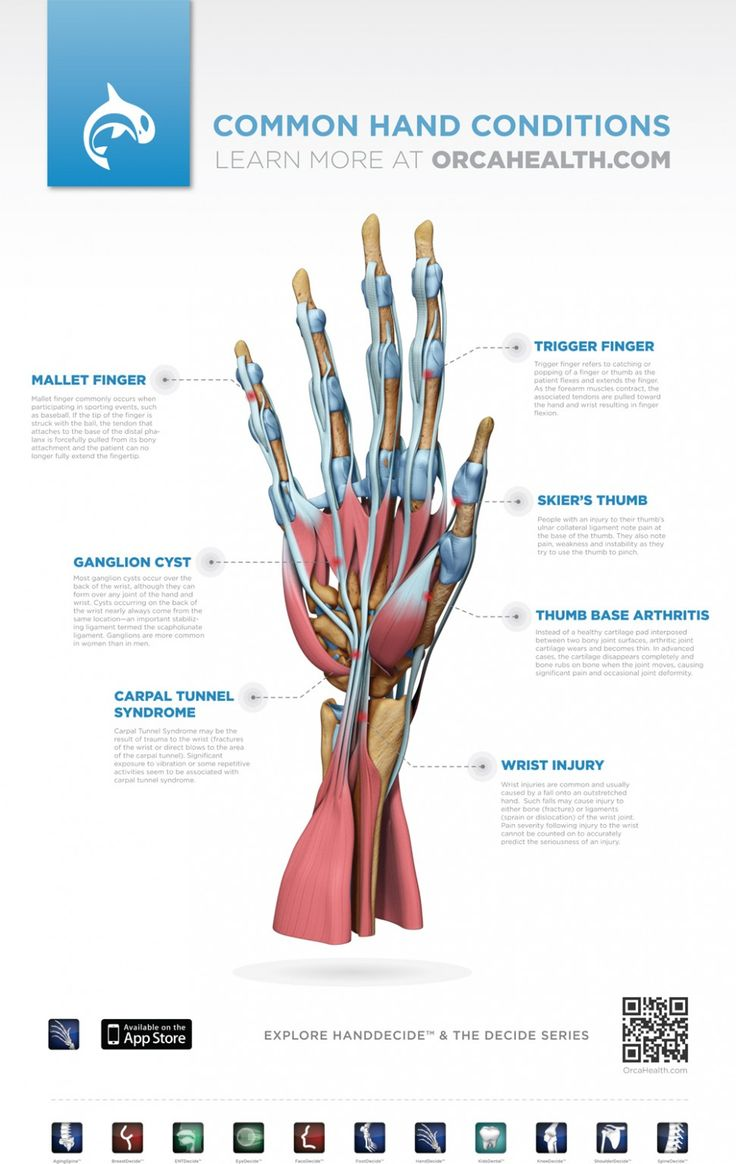 Here are some common hand injuries. CardioFlex has a dedicated Certified Hand Therapist ready to help with treatment for those injuries. #certifiedhandtherapy #carpaltunnelsyndrome #handtreatment