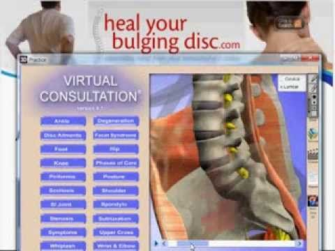 34 Best Spinal Decompression For Anyone With Bulging