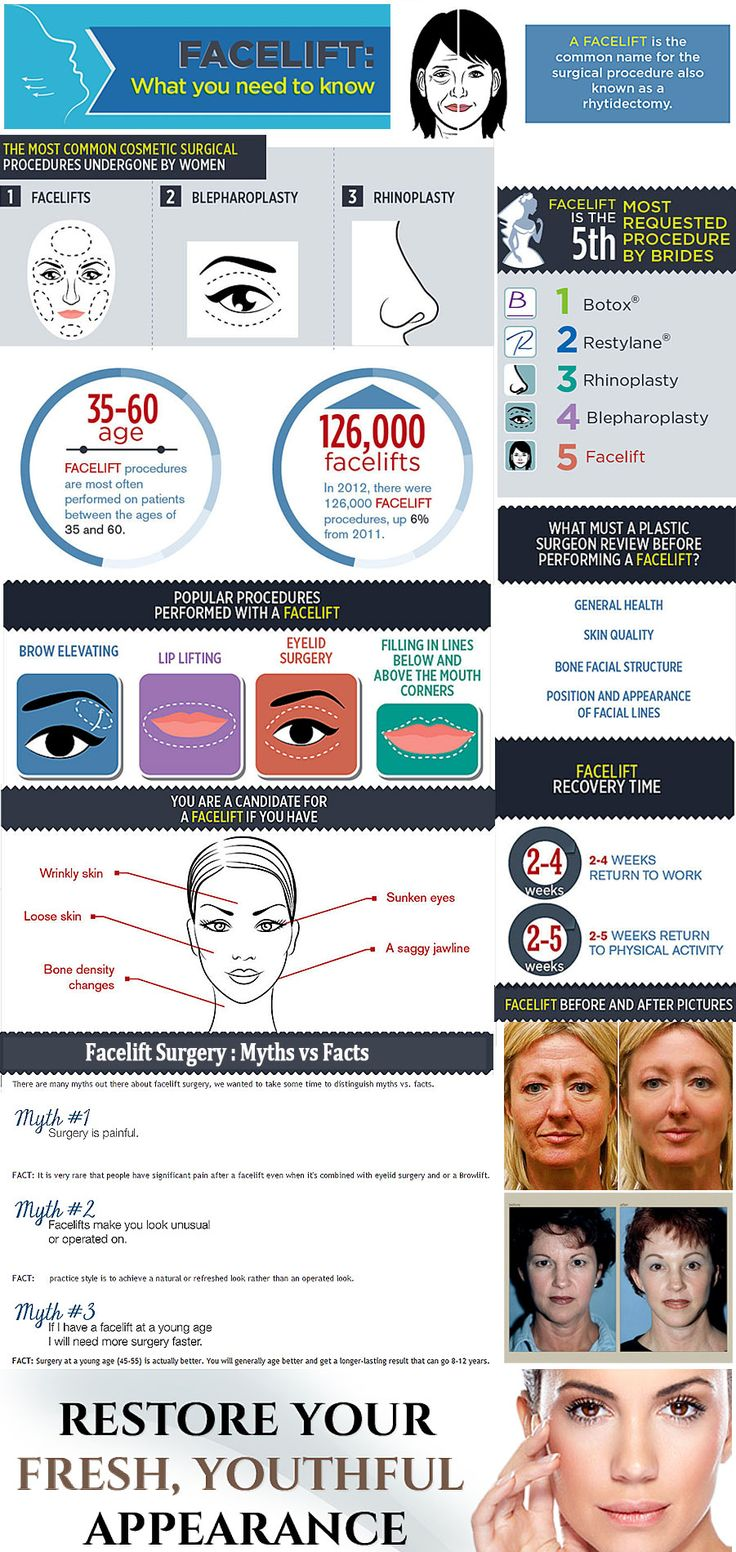 Thinking about a #Facelift Surgery : essential facts about this popular #cosmetic #surgery