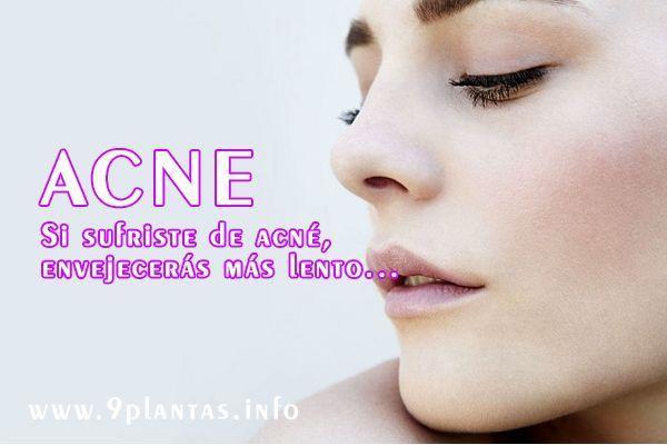 Acné, sufriste de acné pues envejecerás más lento, según estudio