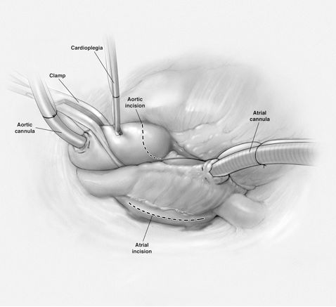 Concurrent Aortic and Mitral Valve Replacement by Michael King