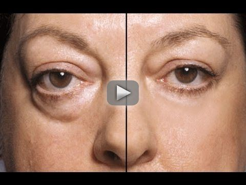 HOW TO: MAKE UNDER EYE BAGS DISAPPEAR IN SECONDS!!!! - CHECK THIS OUT!!!!    Once you learn this technique it can change your life. Remember, you must only apply the concealer to the shadow that the bag creates otherwise you will make your under eye bags stand out even more.  While some degree of puffiness may be normal for a given individual, factors such as age and fatigue may make the swelling more prominent. The periorbital tissues are most noticeably swollen immediately after waking,