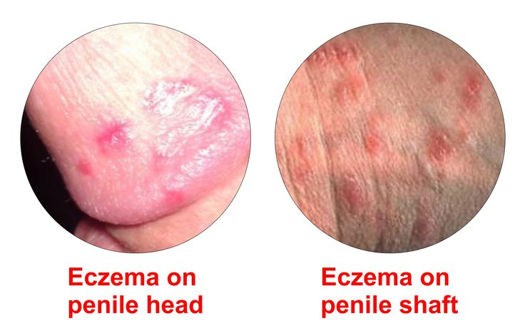 Red sore on penis head