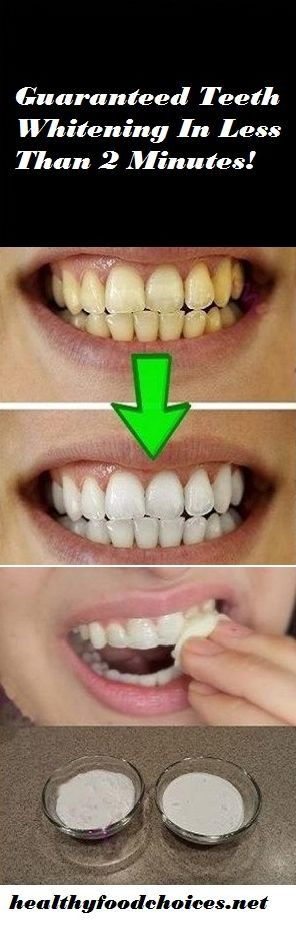 Guaranteed Teeth Whitening In Less Than 2 Minutes!