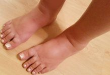 How to Treat Swollen Feet With Home Remedies  Swollen feet is considered as the most common problem, which anyone can face at some point of time in their lives. However, it should be noted that the condition of swollen feet is not a disease but a symptom of any underlying issue