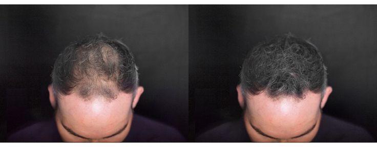 Haarausfall bei Frauen kreisrunder Haarausfall Haarwuhsmittel Geheimratsecken stoppen