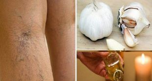 Dites adieu les varices ! Voici comment vous pouvez vous en débarrasser naturellement et rapidement !