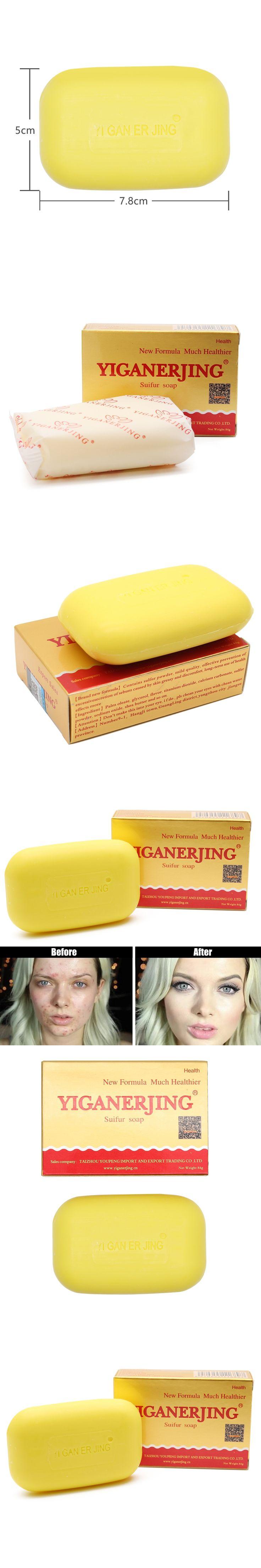 Sulfur Soap Skin Conditions Acne Psoriasis Seborrhea Eczema Anti Fungus Bath whitening soap shampoo soap making