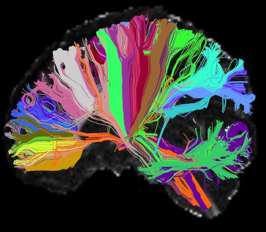High Angular Resolution Diffusion Image (HARDI) of the human brain
