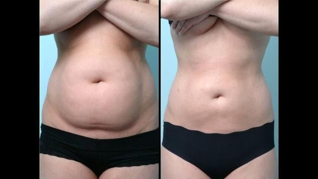 This Japanese Secret Will Help You Get Rid Of Belly Fat Overnight