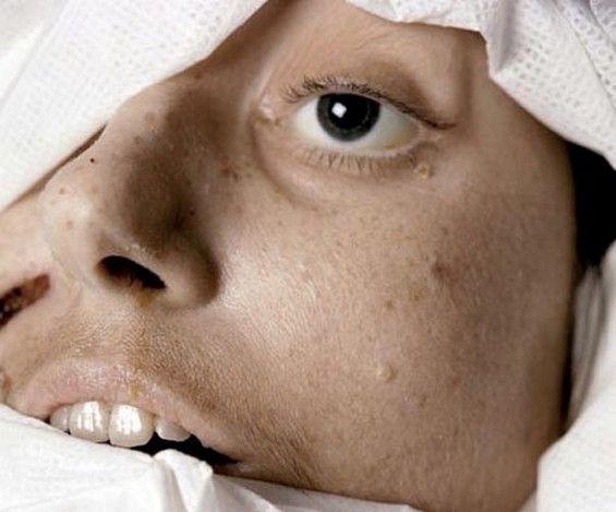 """""""The Morgue"""" retrata cómo se muere en la contemporaneidad, se centra en los detalles y texturas de ese cuerpo que se ha extinguido."""