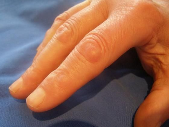 Knuckle pads, also called Garrod's pads, often come with Dupuytren's contracture