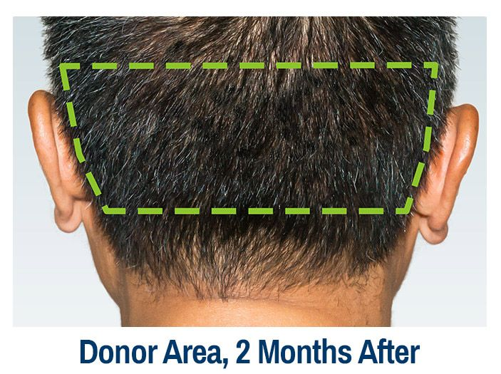 23++ Haircut donor area after hair transplant ideas