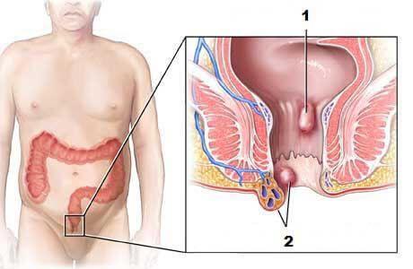 Jak vyléčit hemoroidy