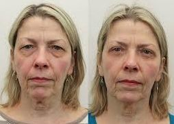 Acquiring A Perfect Non-Invasive Facelift With Face Revitalization Gymnastics