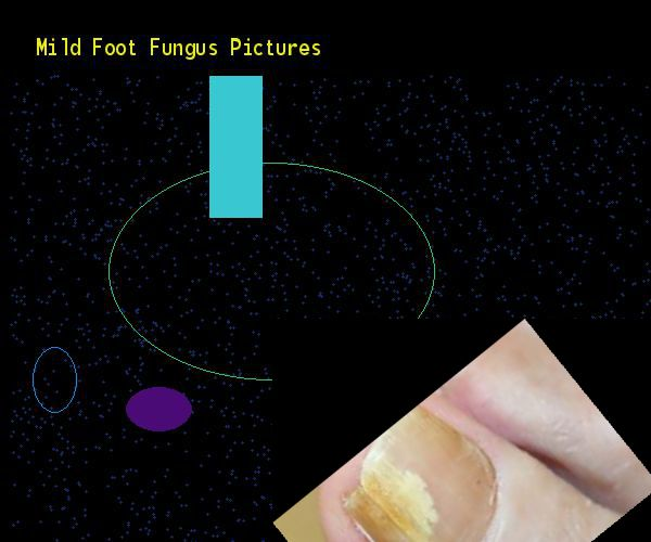 Mild foot fungus pictures - Nail Fungus Remedy. You have nothing to lose! Visit Site Now