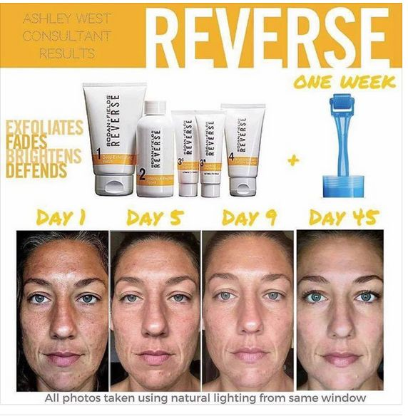 """This is fellow consultant Ashley West.  45 days of Reverse and over the last week added the Amp MD Roller to her routine. Improved tone, texture, and clarity of pigmentation in the skin.   """"I didn't have great skin to start with, these products gave me great skin! I tried everything else you can think of, every brand you've probably ever seen, and they are the only ones that gave me results like this. They work! They are worth it! Your best skin is worth it!"""""""