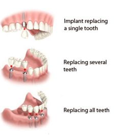 Low Cost Dental Implant Care. Contact us for Free Implant Consultation.