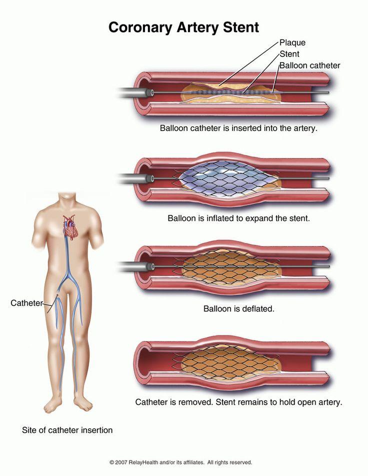 Cardiac Stent Diet