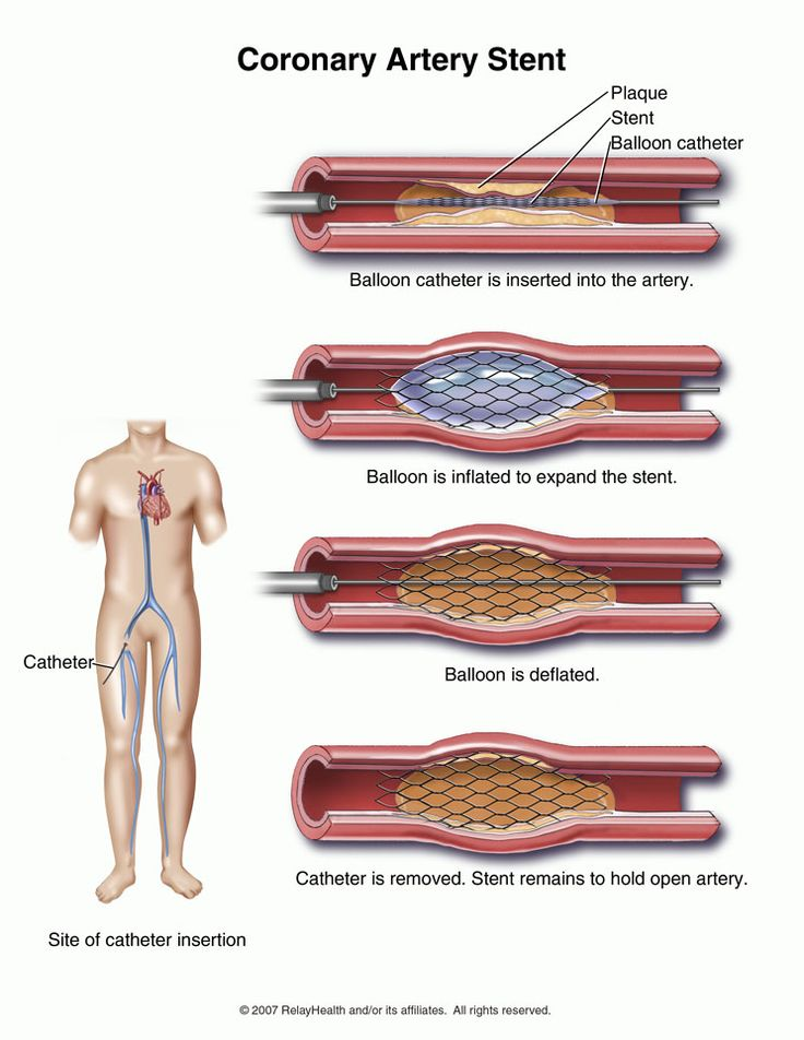 Stents For Heart Patients      Yes or No?