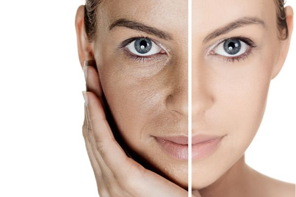 Nobody observes our pores just the way we see them in mirror. skin pores make the face look dull and aged. Here are 17 effective home remedies to handle them