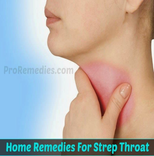 home remedies for strep throat pro remedies medicinal