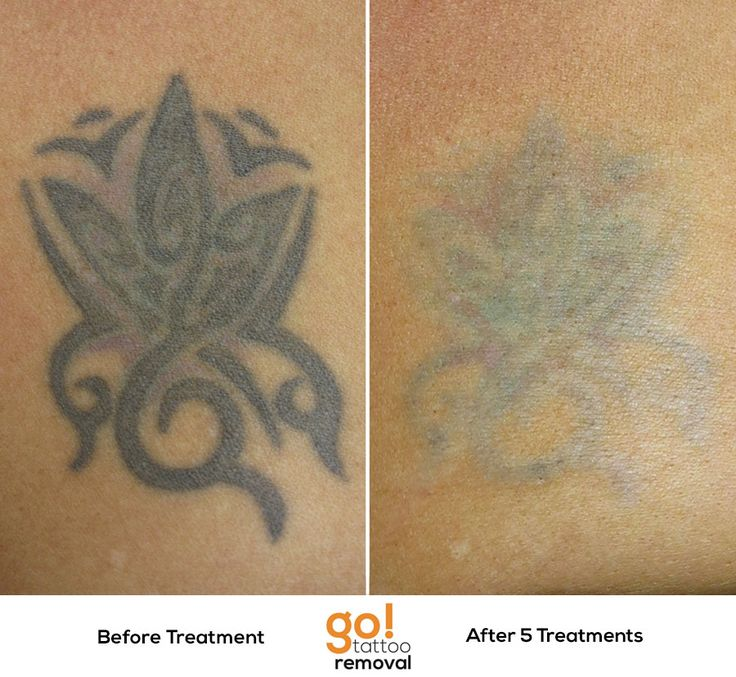 10 Best Images About Tattoo Removal In Progress On
